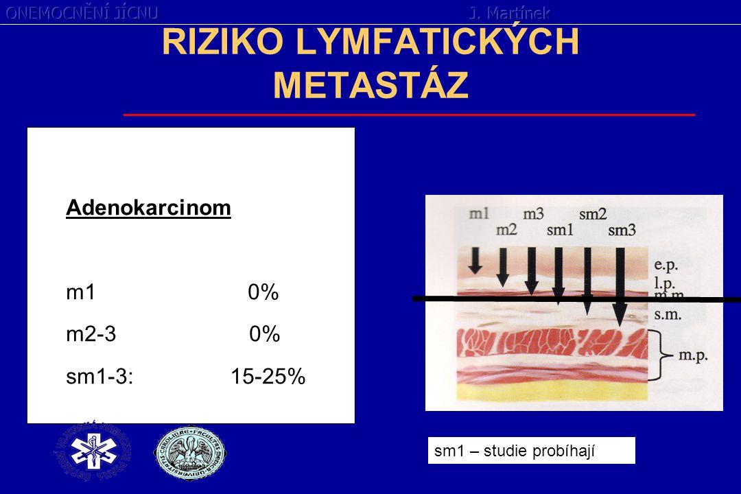 RIZIKO LYMFATICKÝCH METASTÁZ Adenokarcinom m1 0% m2-3 0% sm1-3: 15-25% sm1 – studie probíhají