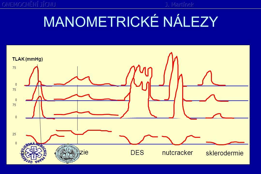 0 25 0 75 0 0 TLAK (mmHg) norma achalázie DESnutcracker sklerodermie MANOMETRICKÉ NÁLEZY