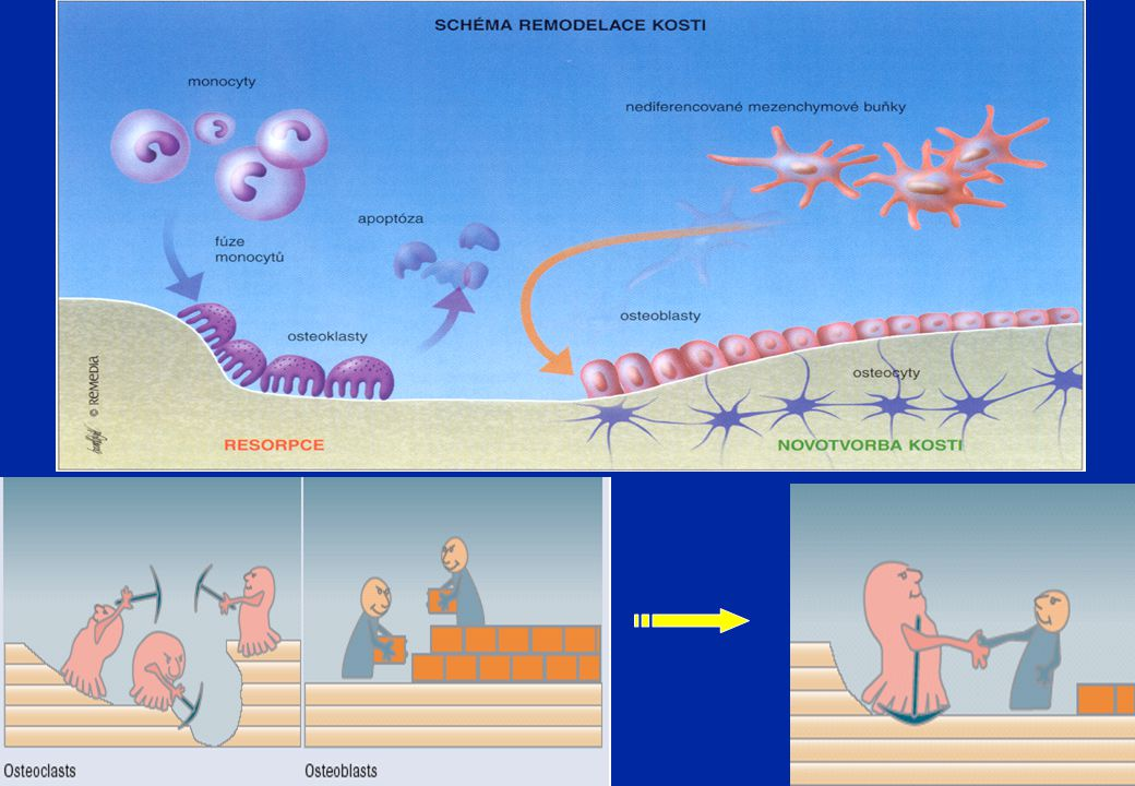 Propeptidy prokolagenu typu I (PINP) Vznik při syntéze kolagenu I, produkt osteoblastů, 70 kD, vysoce specifický pro kosti Marker volby pro hodnocení osteoformaceMarker volby pro hodnocení osteoformace Koncentrace nezávisí na funkci ledvin, termostabilní marker, žádné cirkadiánní změny, žádný vliv potravy Využití: c) časný záchyt osteoblastických kostních metastáz u Ca prostaty a prsuVyužití: a) sledování úspěšnosti léčby osteoporózy b) léčba růstovým hormonem u dětí s jeho nedostatkem c) časný záchyt osteoblastických kostních metastáz u Ca prostaty a prsu