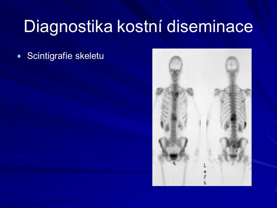 Diagnostika kostní diseminace Scintigrafie skeletu RTG