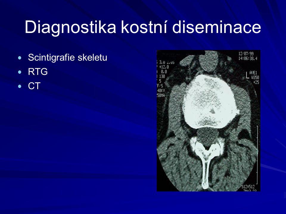 Diagnostika kostní diseminace Scintigrafie skeletu RTG CT