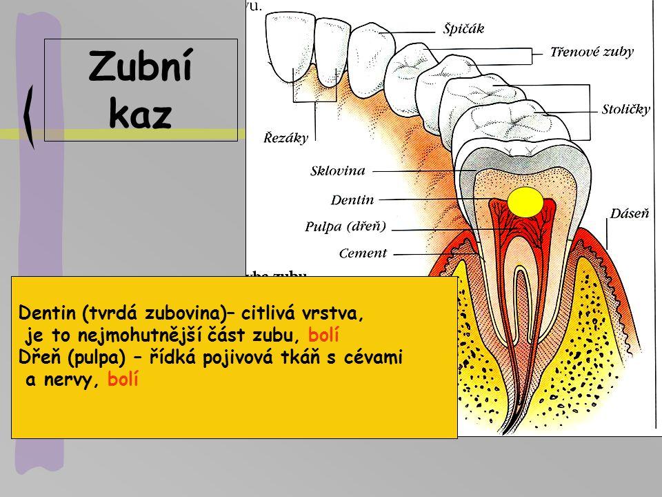 Nemoci GIT..rakovina..zánět..rakovina..zánět..rakovina..zánět..rakovina..zánět Zuby – zubní kaz, zánět dásní - gingivitis Dutina ústní, -angína=akutní