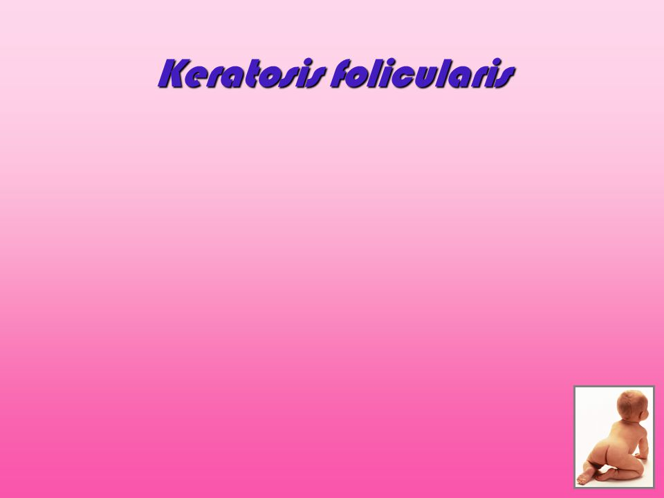 """Plenky na jedno použití x Klasické látkové pleny Zevní """"nepromokavá vrstva zabraňuje odpařování vlhkosti okluzní fyzikální bariéra zvýšení teploty a vlhkosti prostředí Předpoklad vzniku plenkové dermatitidy Plenky na jedno použití x Klasické látkové pleny Zevní """"nepromokavá vrstva zabraňuje odpařování vlhkosti okluzní fyzikální bariéra zvýšení teploty a vlhkosti prostředí Předpoklad vzniku plenkové dermatitidy"""
