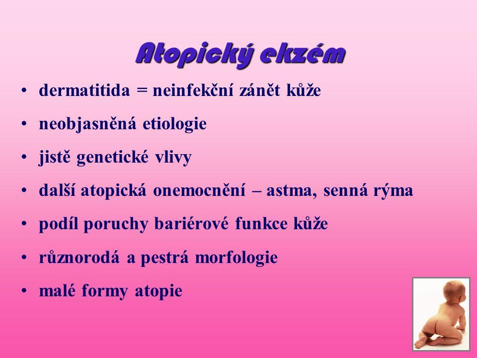 Dermatitis seborhoica Onemocnění ze skupiny ekzému Alergie.