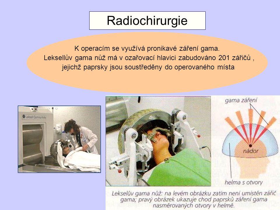 Radiochirurgie K operacím se využívá pronikavé záření gama.