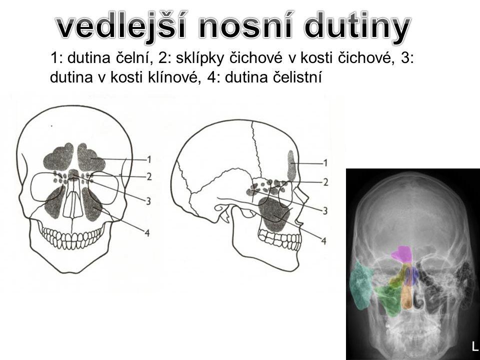 1: dutina čelní, 2: sklípky čichové v kosti čichové, 3: dutina v kosti klínové, 4: dutina čelistní