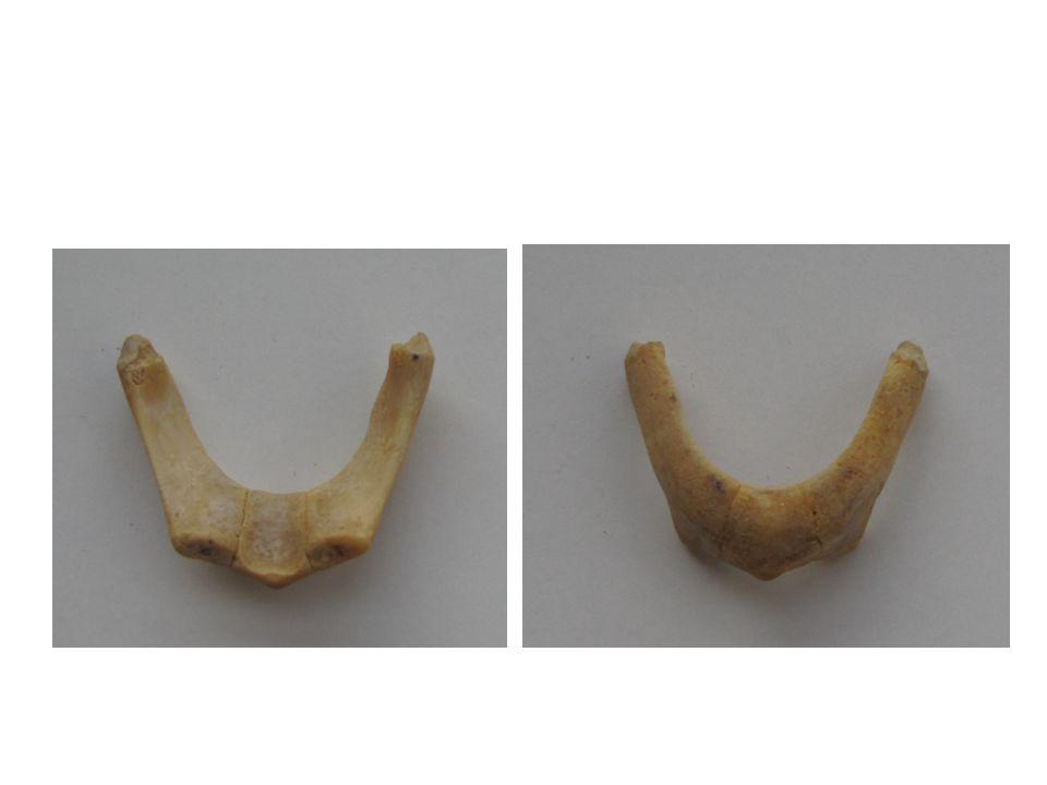 Shrnutí a opakování Které kosti tvoří obličejovou část lebky.