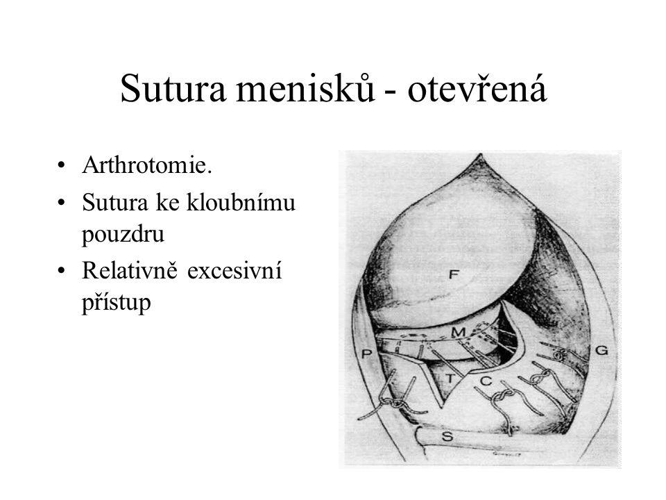 Sutura menisků- arthroskopická Metoda outside in side- uzlová - stehová Metoda inside- outside Metoda all inside Specielní svorky