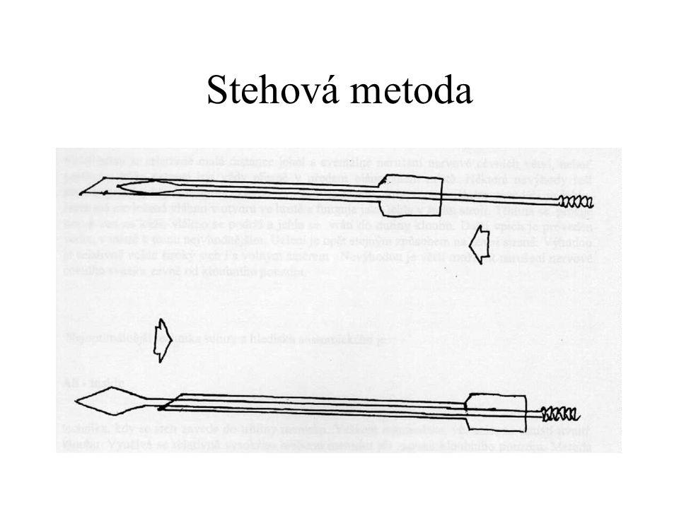 Metoda Inside outside Použití specielního instrumentaria Clancy Jacob