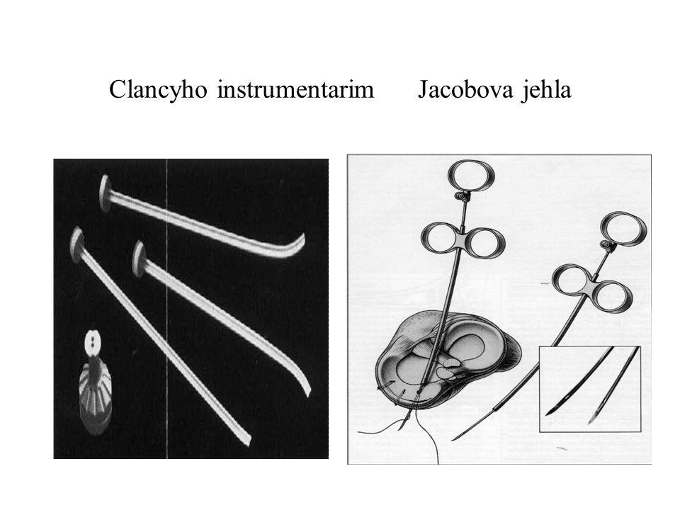 Clancyho instrumentarim Jacobova jehla