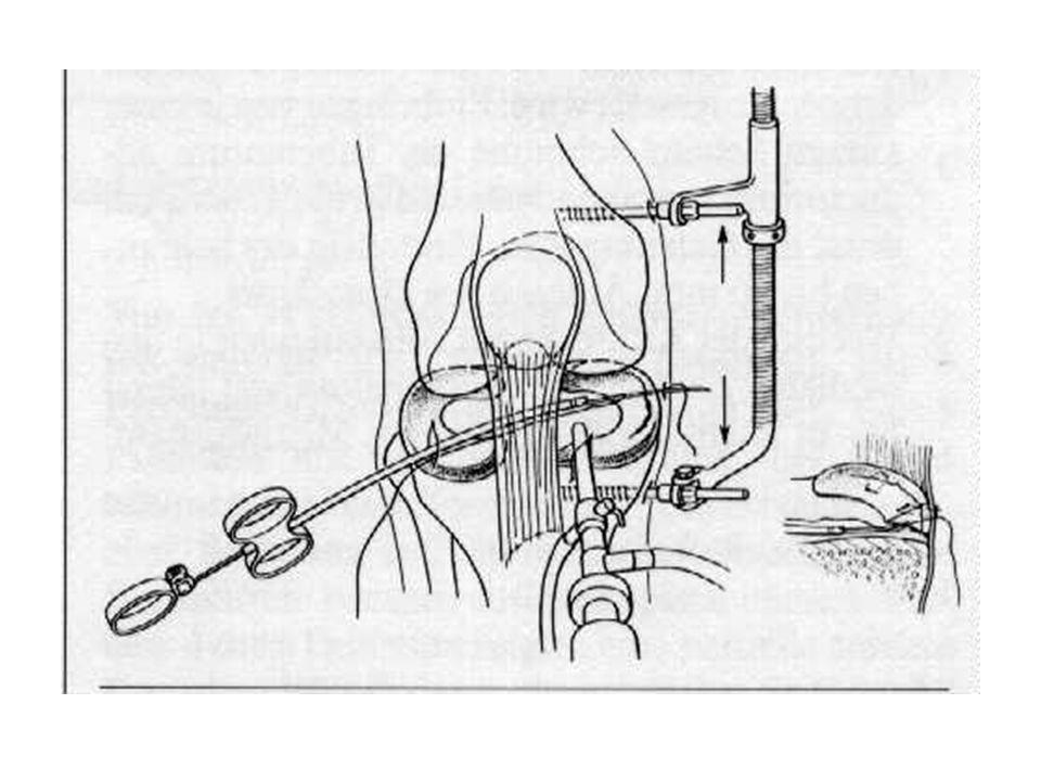 All inside se stehy - Suture hooks s implantáty- nevstřebatelné (T-fix) vstřebatelné (meniscus arrow) jednoduché ale nákladné