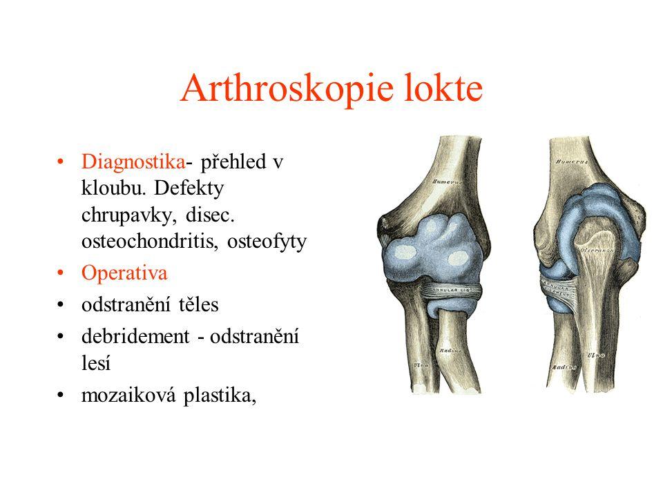 Arthroskopie zápěstí Diagnostika- přehled v kloubu zajištěn více vstupy,TFCC, defekty chrupavky a laese lig.