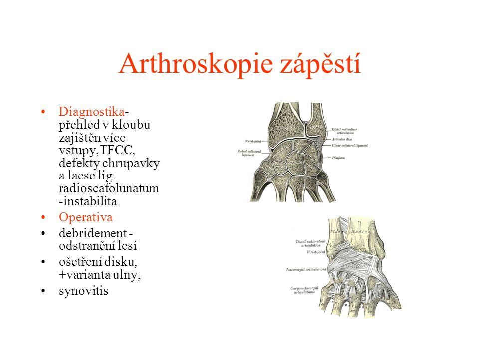 Arthroskopie kyčle Opomíjená oblast Obtížně přístupná - RTG, Sono Obtížně přehledná Arthrotická problematika – mechanické poškození chrupavky – limbus, osteochondritis diss, frct.
