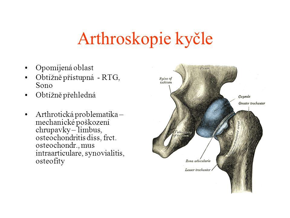 Arthroskopie hlezna Diagnostika- dokonalá, přehled v kloubu, syndesmosa dobře detekovatelná.