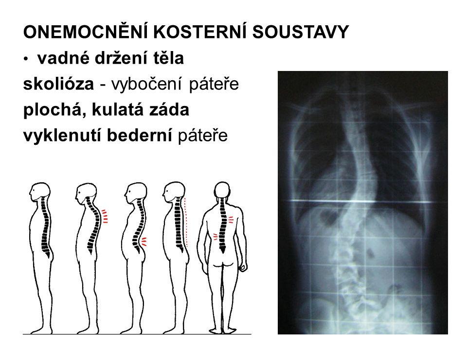 ONEMOCNĚNÍ KOSTERNÍ SOUSTAVY vadné držení těla skolióza - vybočení páteře plochá, kulatá záda vyklenutí bederní páteře