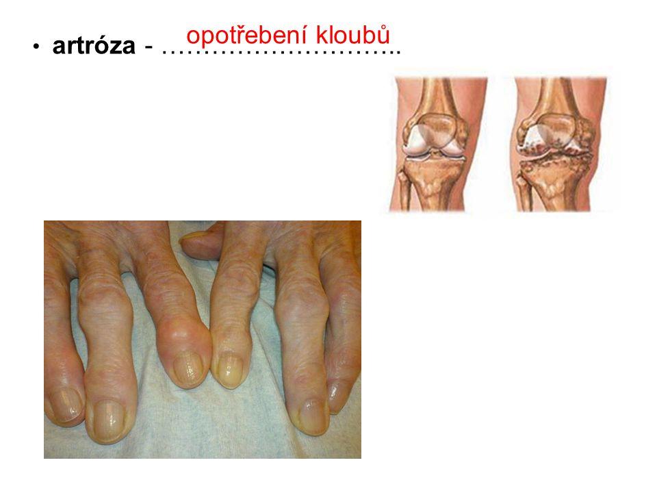 artróza - ……………………….. opotřebení kloubů