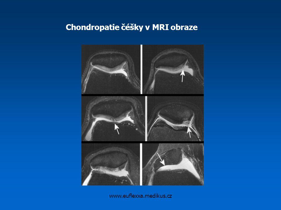 www.euflexxa.medikus.cz Chondropatie čéšky v MRI obraze