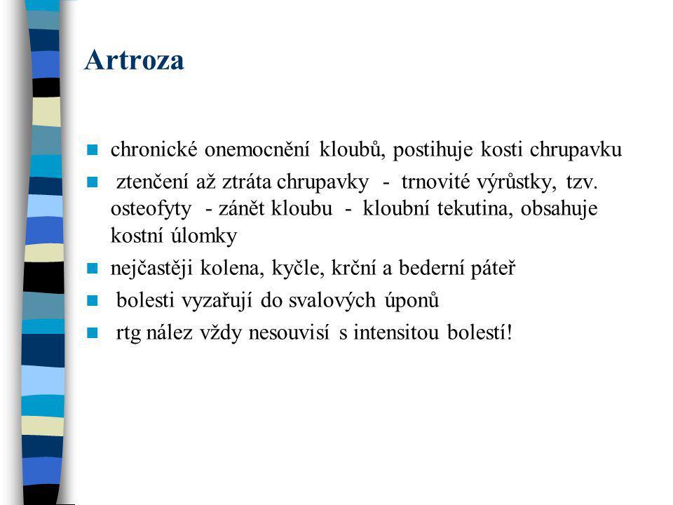 Artroza chronické onemocnění kloubů, postihuje kosti chrupavku ztenčení až ztráta chrupavky - trnovité výrůstky, tzv. osteofyty - zánět kloubu - kloub