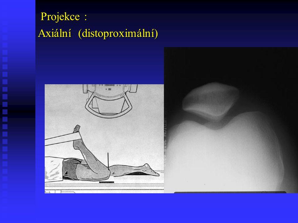 Frickova projekce Frickova projekce Zobrazení intercondylických prostorů
