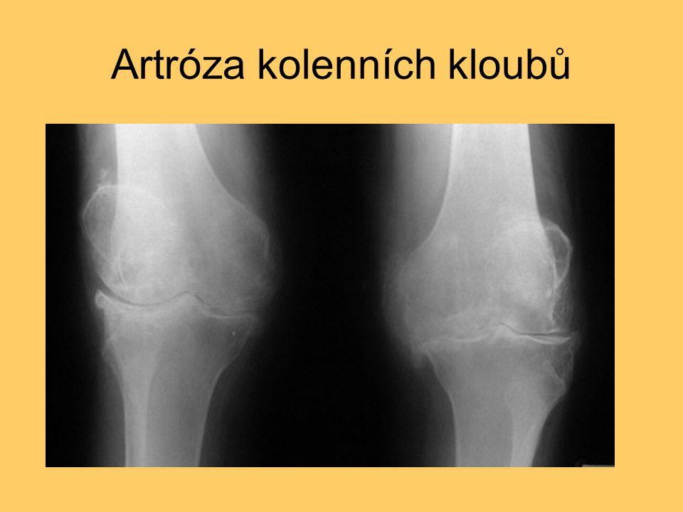 Artróza kolenních kloubů