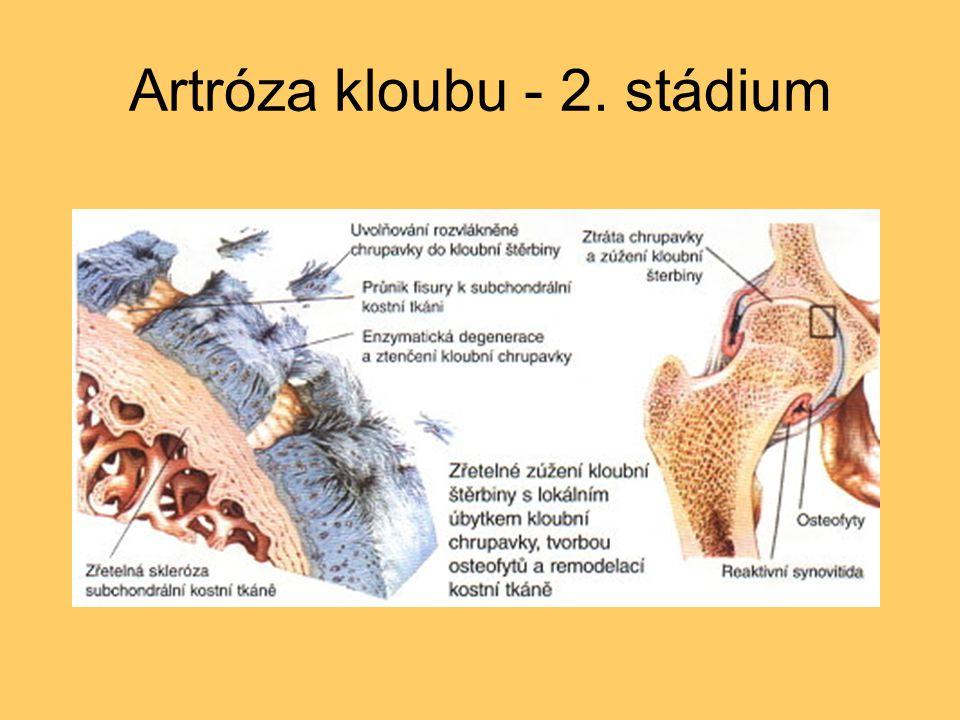 Artróza kloubu - 2. stádium