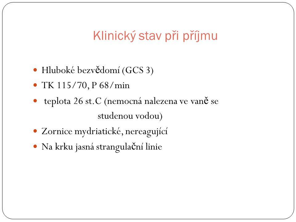 Klinický stav při příjmu Hluboké bezv ě domí (GCS 3) TK 115/70, P 68/min teplota 26 st.C (nemocná nalezena ve van ě se studenou vodou) Zornice mydriatické, nereagující Na krku jasná strangula č ní linie