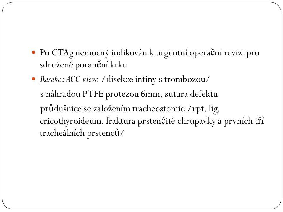 Po CTAg nemocný indikován k urgentní opera č ní revizi pro sdružené poran ě ní krku Resekce ACC vlevo /disekce intiny s trombozou/ s náhradou PTFE protezou 6mm, sutura defektu pr ů dušnice se založením tracheostomie /rpt.