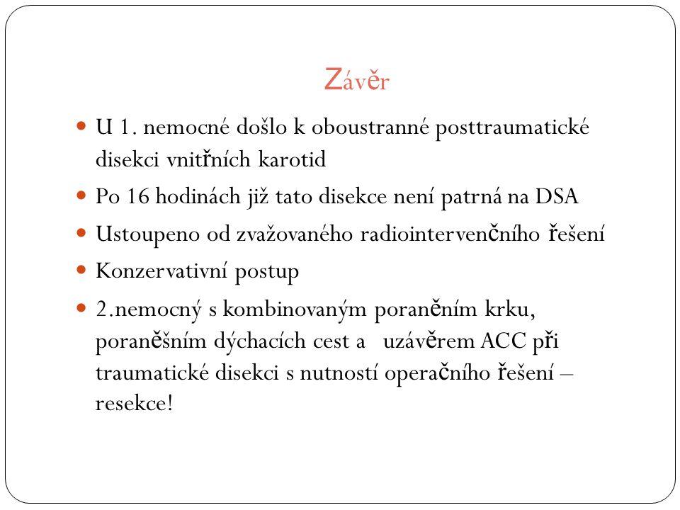 Z áv ě r U 1.