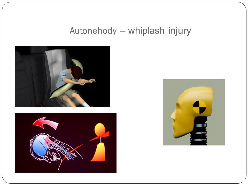 Autonehody – whiplash injury