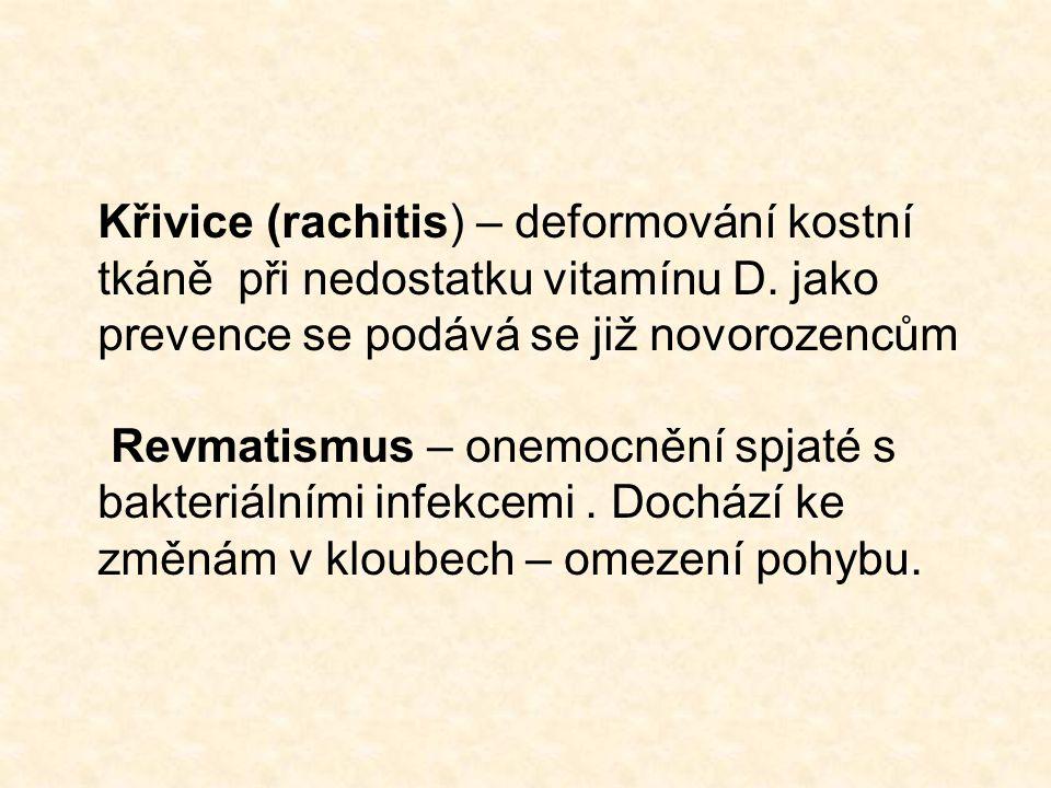 Křivice (rachitis) – deformování kostní tkáně při nedostatku vitamínu D.