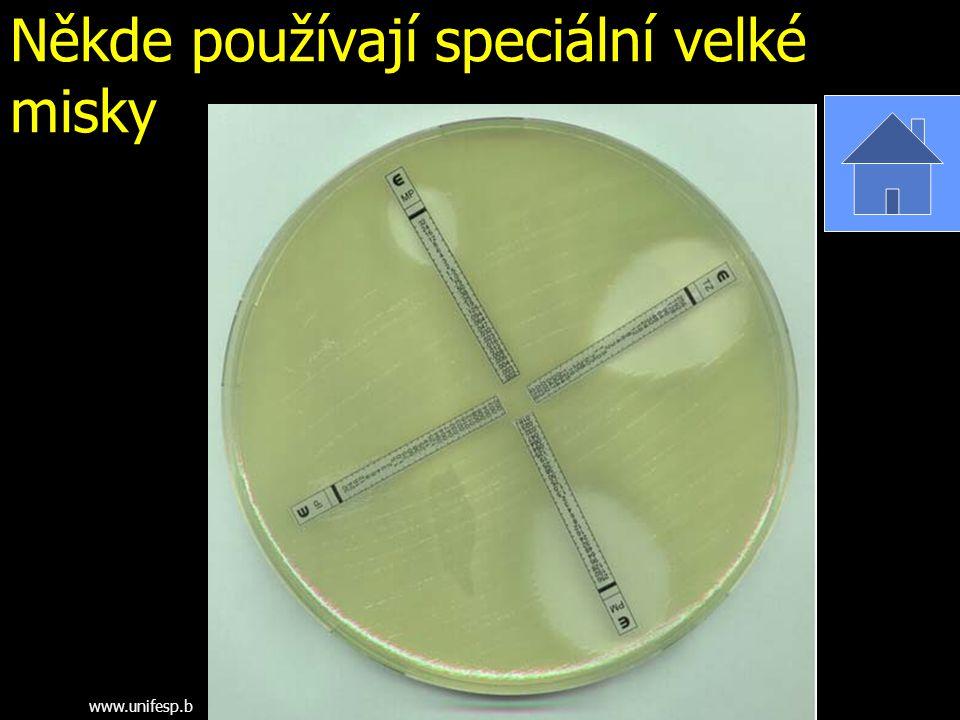 Někde používají speciální velké misky www.unifesp.b