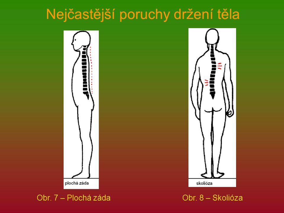 Nejčastější poruchy držení těla Obr. 7 – Plochá zádaObr. 8 – Skolióza