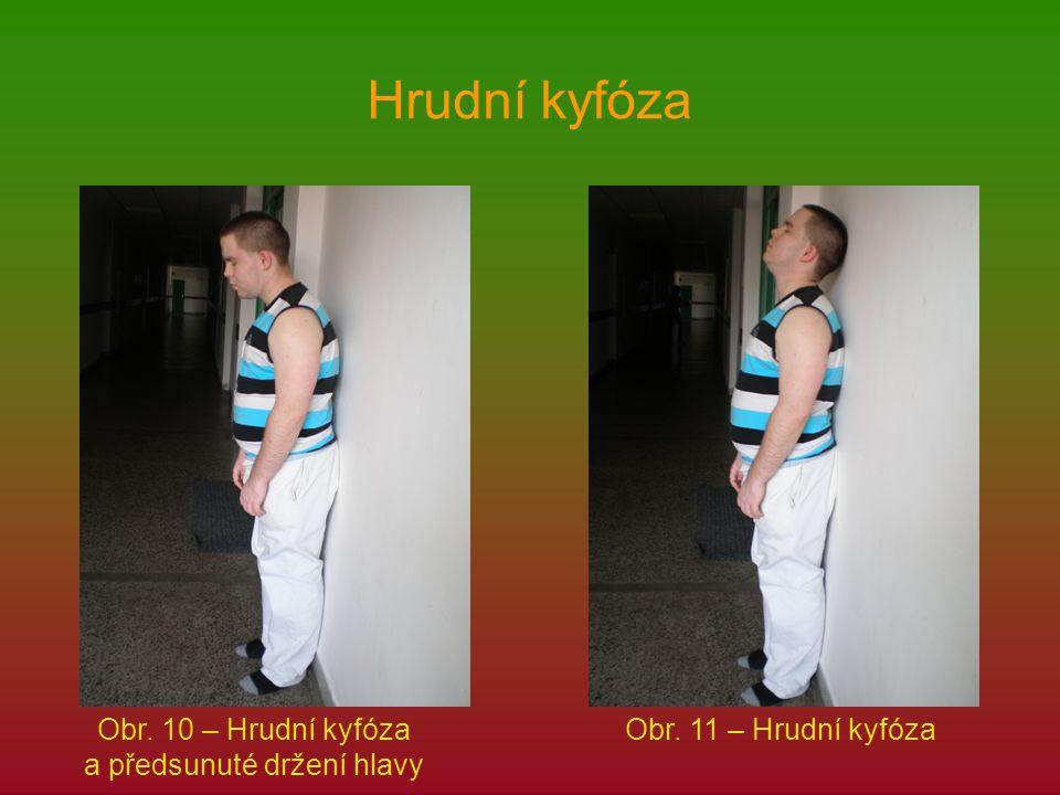 Hrudní kyfóza Obr. 10 – Hrudní kyfóza a předsunuté držení hlavy Obr. 11 – Hrudní kyfóza