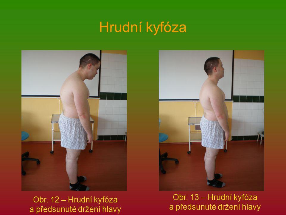 Hrudní kyfóza Obr. 12 – Hrudní kyfóza a předsunuté držení hlavy Obr. 13 – Hrudní kyfóza a předsunuté držení hlavy