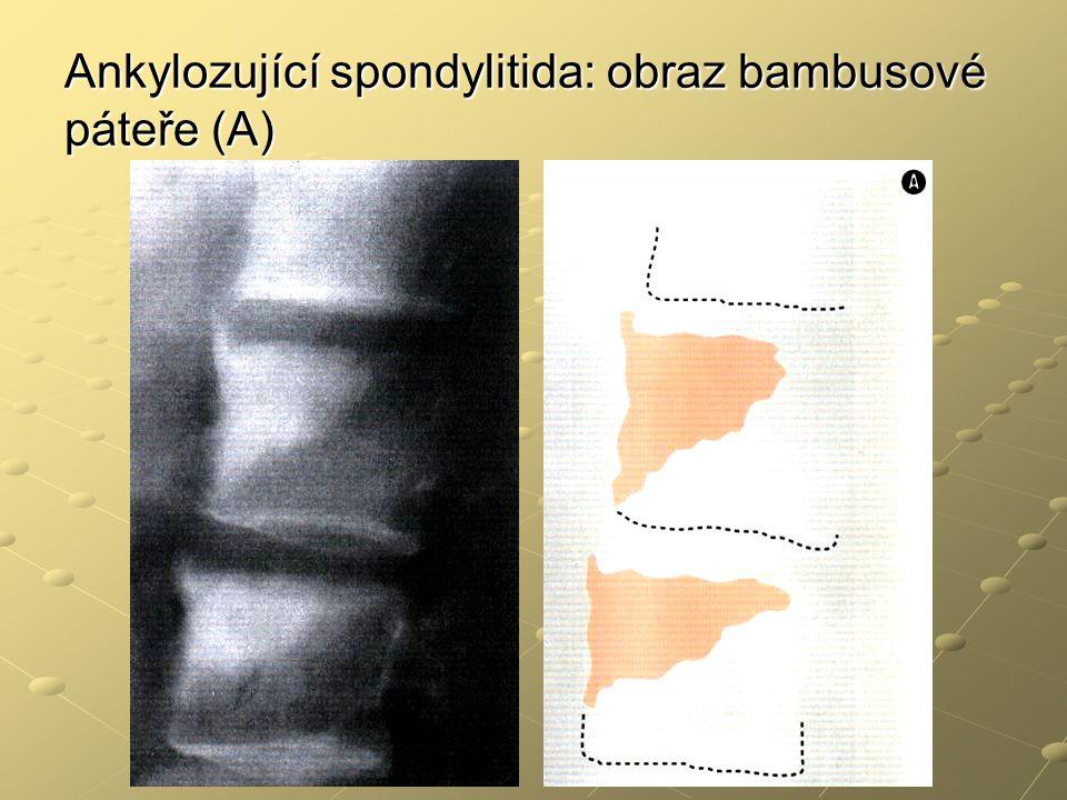 Ankylozující spondylitida: obraz bambusové páteře (A)