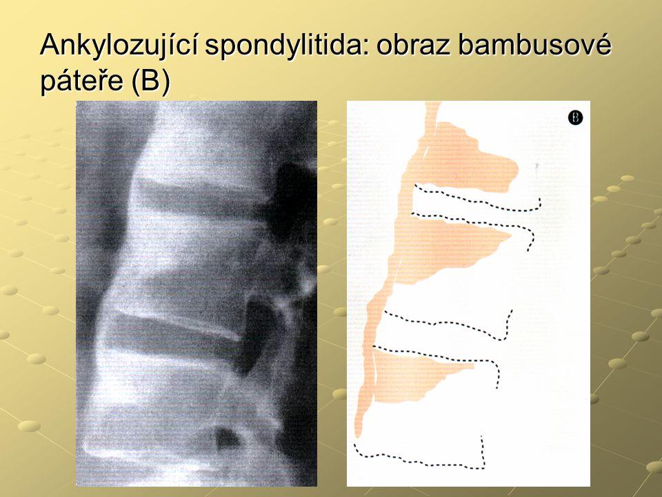 Ankylozující spondylitida: obraz bambusové páteře (B)