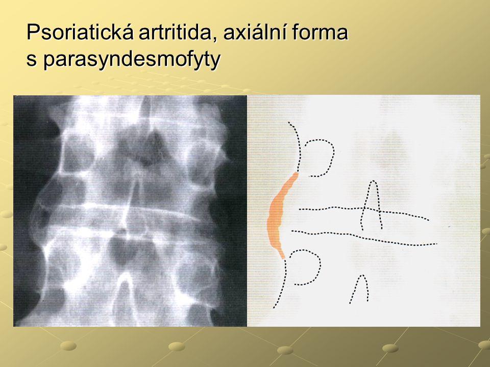 Psoriatická artritida, axiální forma s parasyndesmofyty