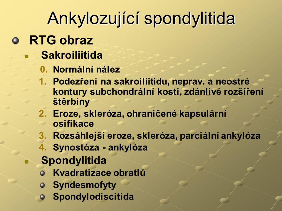 Ankylozující spondylitida RTG obraz Sakroiliitida 0. Normální nález 1. 1.Podezření na sakroiliitidu, neprav. a neostré kontury subchondrální kosti, zd