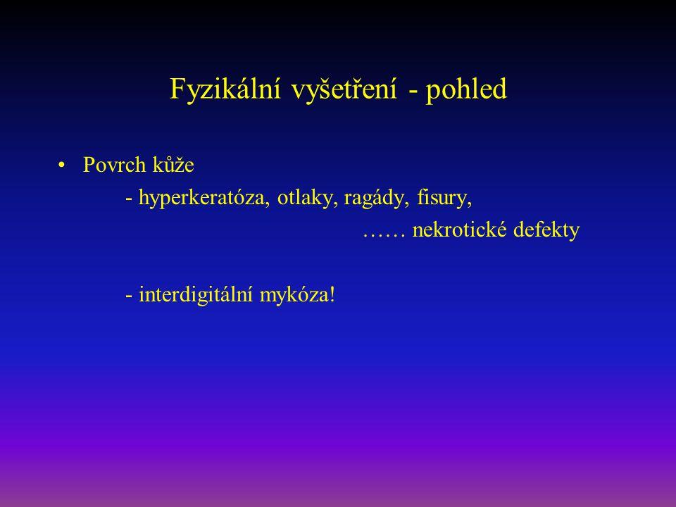 Fyzikální vyšetření - pohled Povrch kůže - hyperkeratóza, otlaky, ragády, fisury, …… nekrotické defekty - interdigitální mykóza!