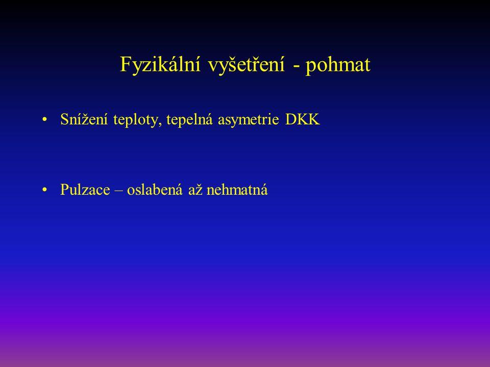Fyzikální vyšetření - pohmat Snížení teploty, tepelná asymetrie DKK Pulzace – oslabená až nehmatná