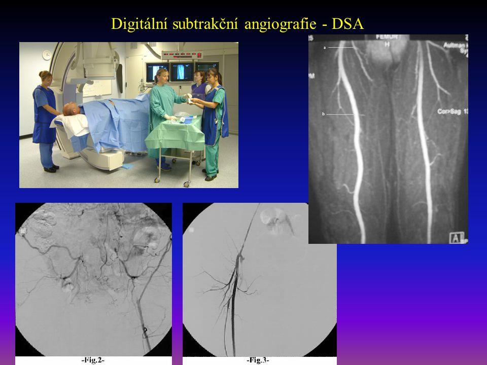 Digitální subtrakční angiografie - DSA