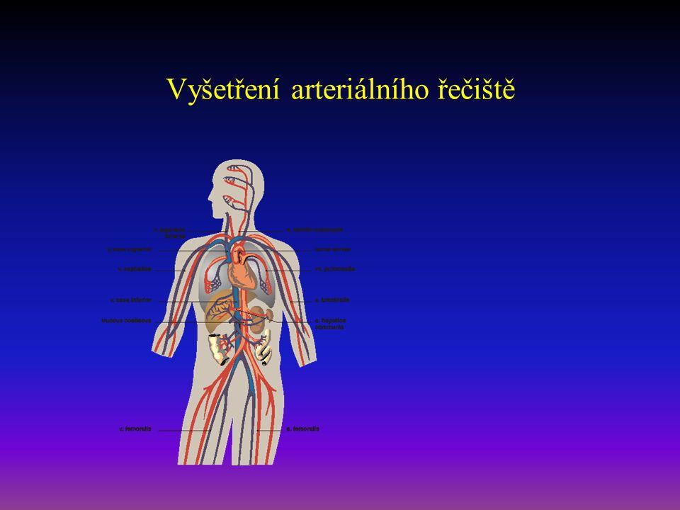Vyšetření tepen anamnéza RA + OA - zaměření na nemoci a okolnosti zvyšující riziko aterosklerózy - zaměření na choroby vznikající na podkladě aterosklerózy