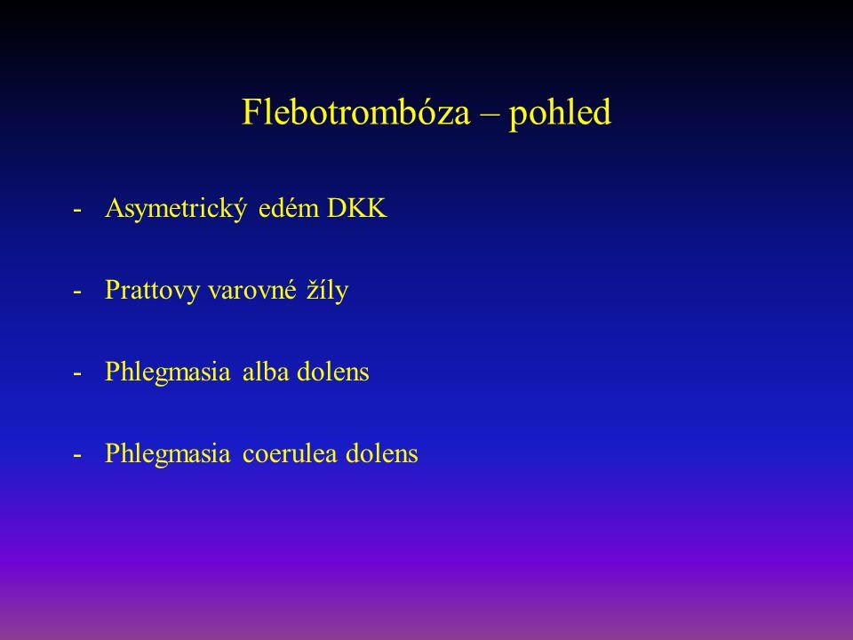 Flebotrombóza – pohled -Asymetrický edém DKK -Prattovy varovné žíly -Phlegmasia alba dolens -Phlegmasia coerulea dolens