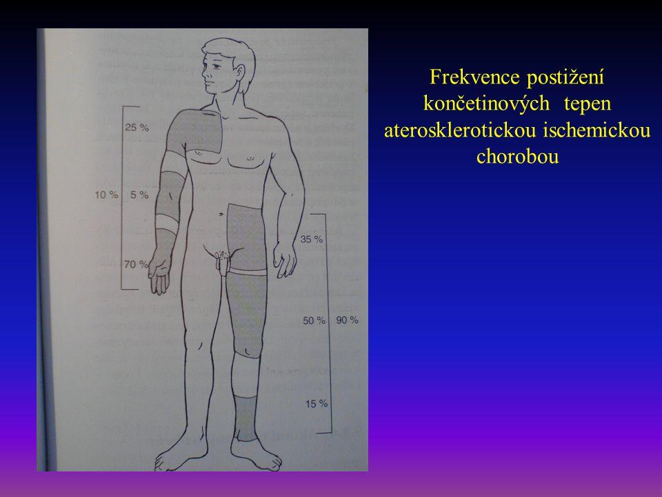 Vyšetření tepen - anamnéza NO - zlodějské syndromy: např.