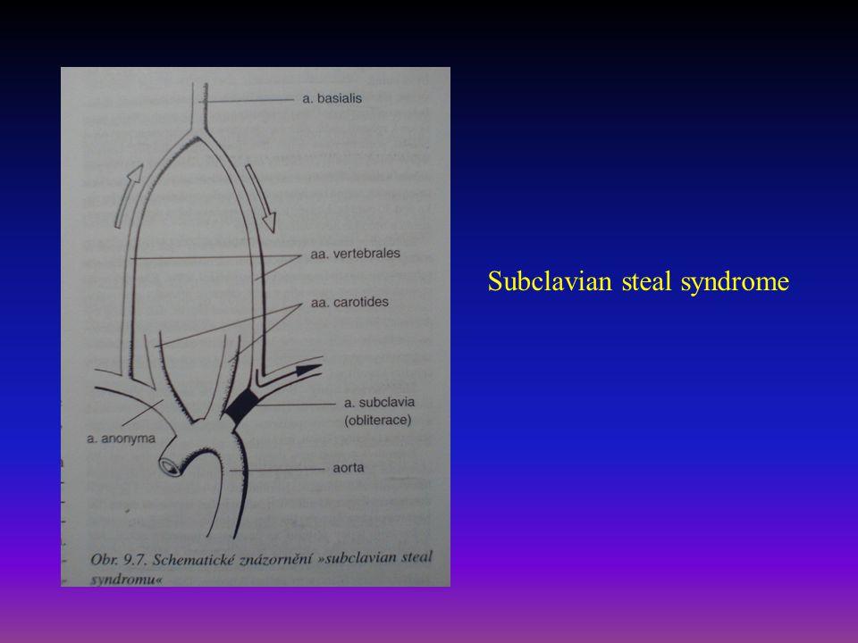 Akutní tepenný uzávěr - symptomy Náhlý uzávěr tepny – embolie/trombóza Prudká, silná bolest, porucha hybnosti Chlad, bledost (později mramorové zbarvení, cyanóza z extravazace) Nehmatné pulzace