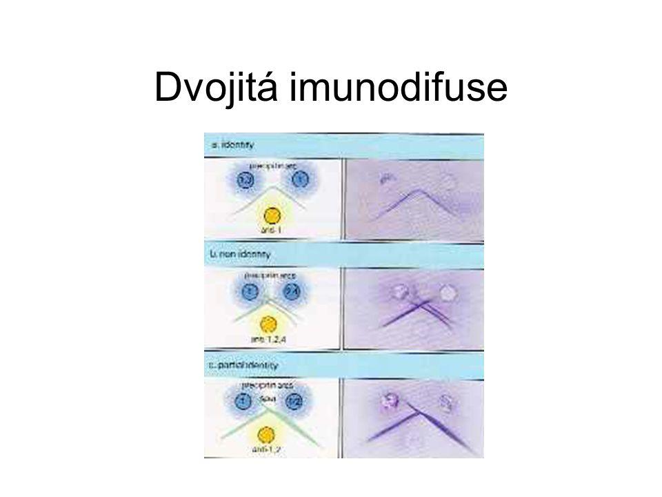 Imunoelektroforéza