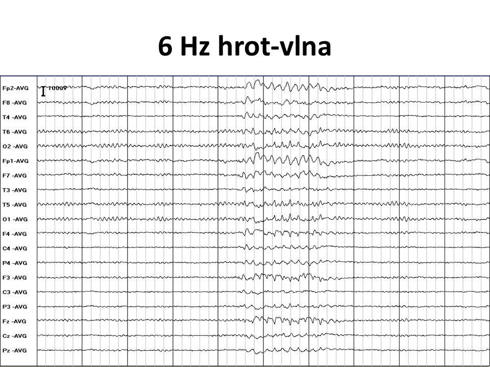 6 Hz hrot-vlna