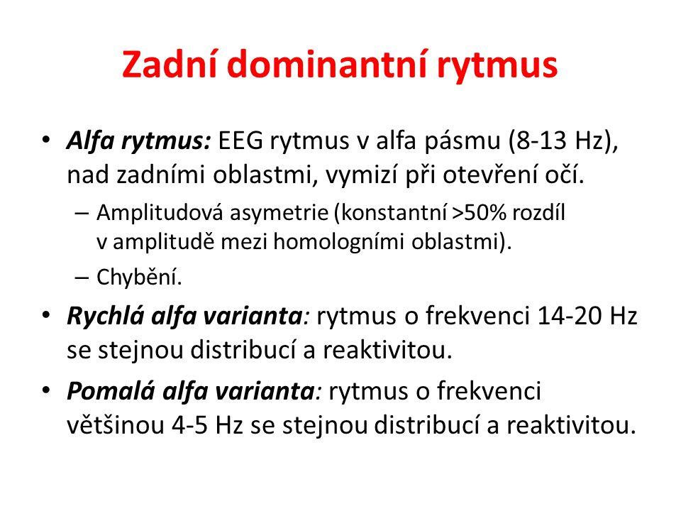 Zadní dominantní rytmus Alfa rytmus: EEG rytmus v alfa pásmu (8-13 Hz), nad zadními oblastmi, vymizí při otevření očí. – Amplitudová asymetrie (konsta