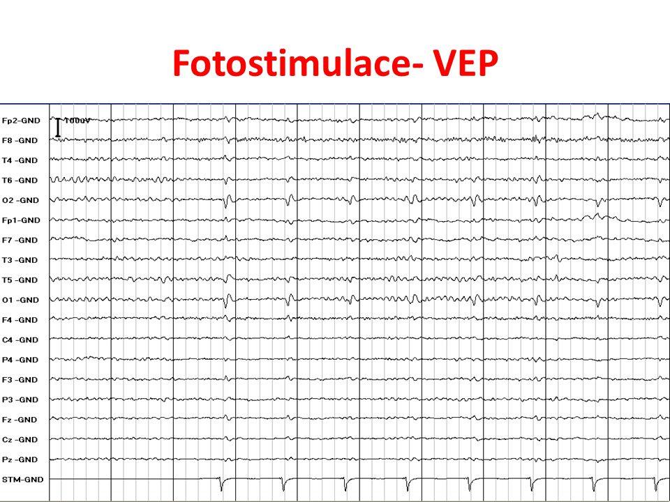 Fotostimulace- VEP