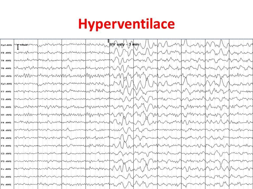 Hyperventilace
